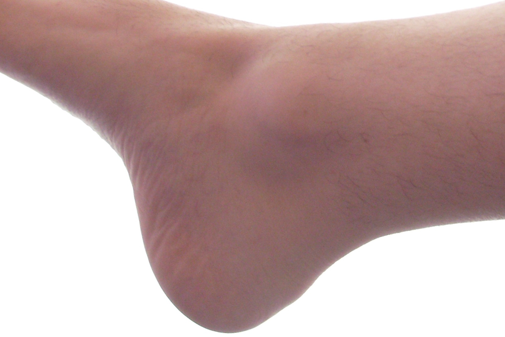 ankle pain specialist in charlotte nc