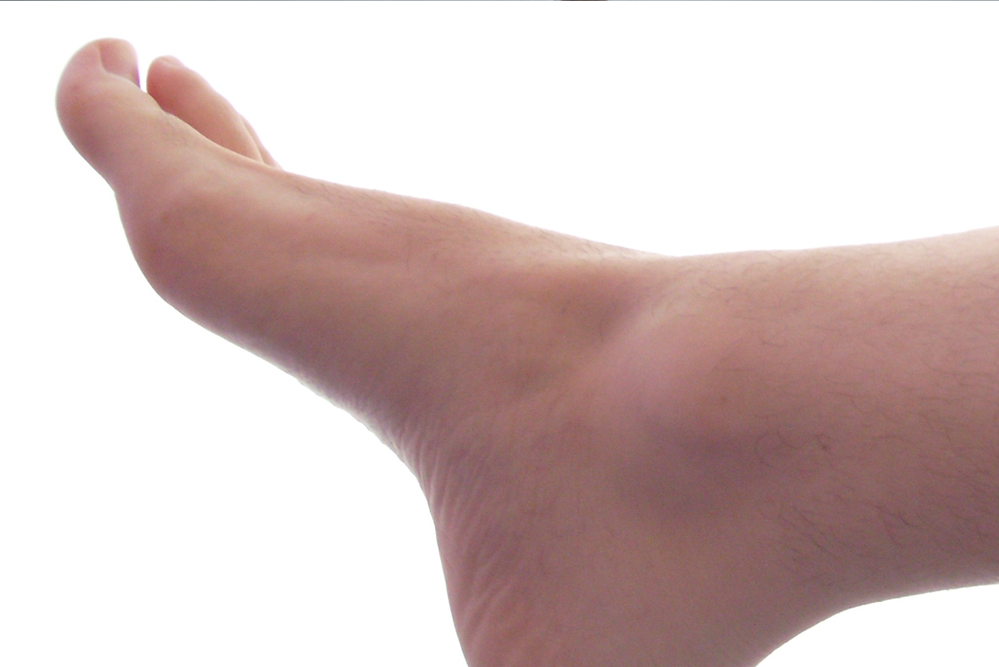 foot pain specialist in charlotte nc