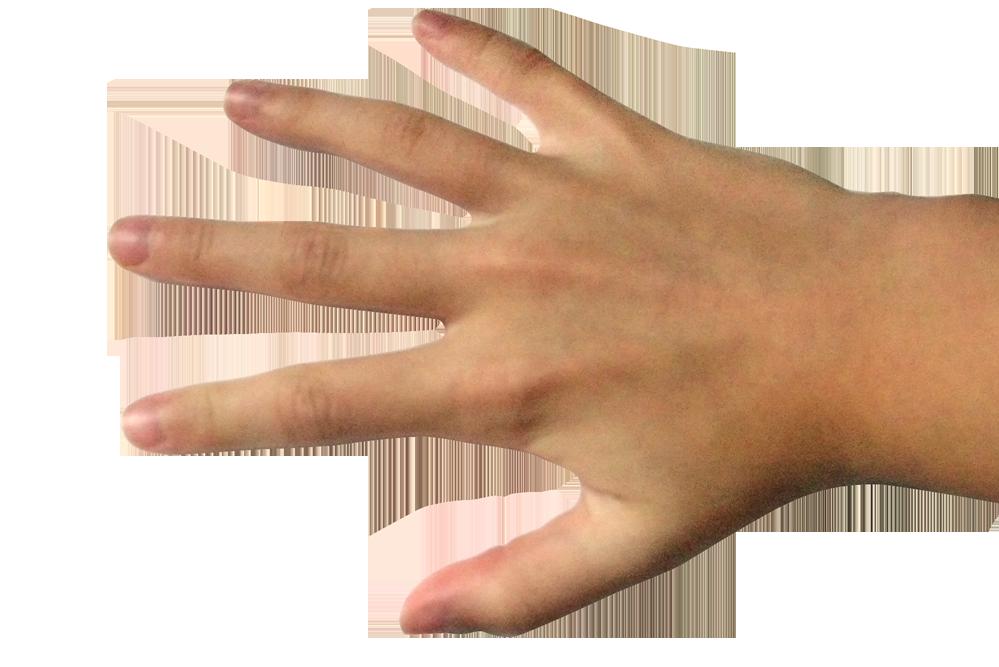 hand pain management nc
